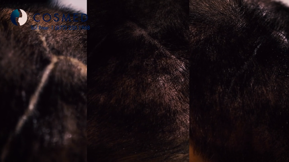 scalp micropigmentation in tijuana