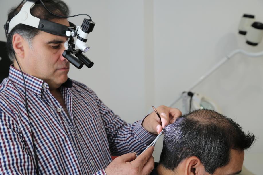 hair transplant dr alessandrini tijuana