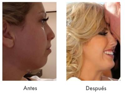 implante de menton en tijuana